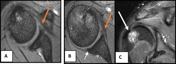 Role Of Conventional Mri And Mr Arthrography In Evaluating Shoulder