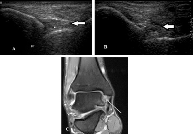 High resolution ultrasonography in ankle joint pain: Where does it ...
