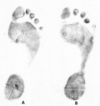 Emergence of forensic podiatry—A novel sub-discipline of
