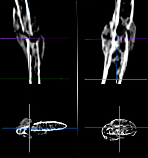 Histologic and radiological analysis on bone fractures