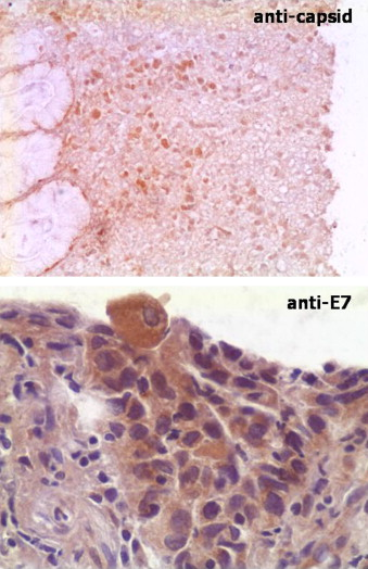 papilloma virus 82