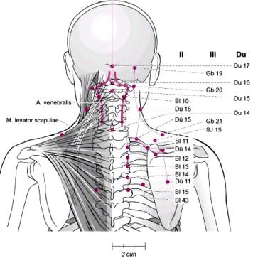 Chinesische Orthopädie: Teil 2: Behandlungskonzepte für die obere ...