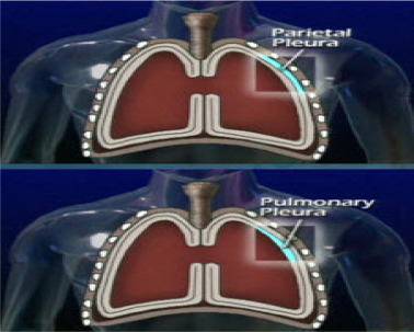 Chest tube care in critically ill patient: A comprehensive