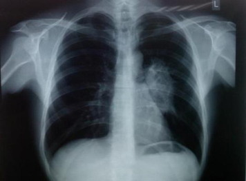 Image result for Pulmonary tuberculosis""