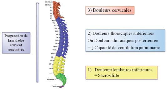 Manifestations Cliniques Et Diagnostic De La Spondylarthrite Ankylosante Sciencedirect