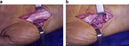 Tratamentul osteocondrozei de ridiche