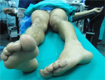 sintomas de una luxacion de cadera