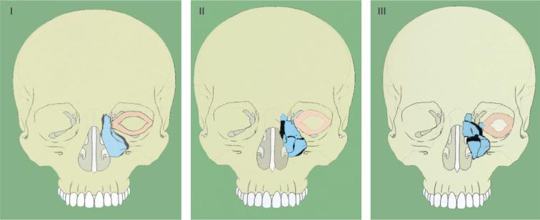 fractura de tabique nasal pdf