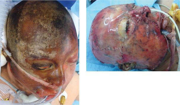 """Quemaduras faciales: """"manejo inicial y tratamiento"""" - ScienceDirect"""