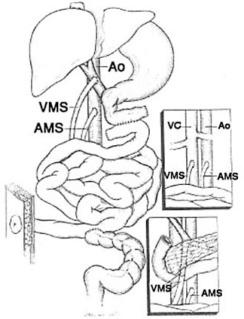 pseudo obstrucción intestinal diabetes y alcohol