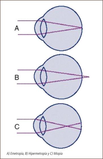 b9bb68a07 Cirugía refractiva: indicaciones, técnicas y resultados - ScienceDirect