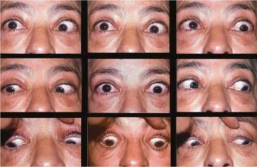 inflamacion de los musculos oculares