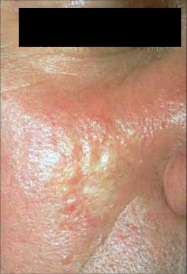 signos cutáneos de cáncer interno