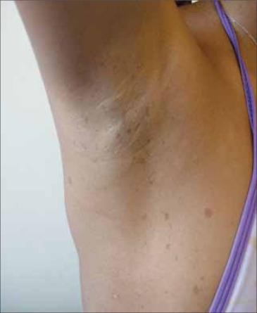 mancha marron rugosa en la piel