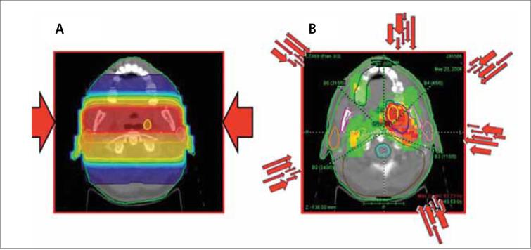 impotencia de las semillas de la radiación del cáncer de próstata