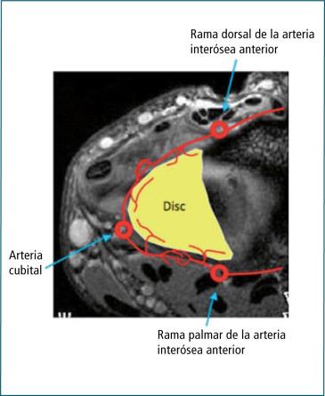 Diagnóstico y tratamiento del dolor cubital de muñeca en el ...