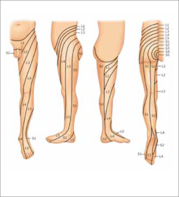 dolor sordo y doloroso en la pierna izquierda