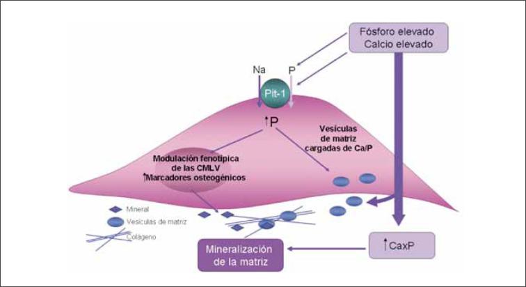 Patogénesis de calcificación distrófica de la hipertensión