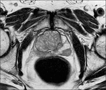 resonancia magnética de próstata con costo de contraste de