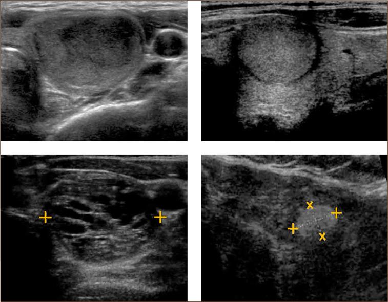 caracteristicas de un nodulo tiroideo maligno
