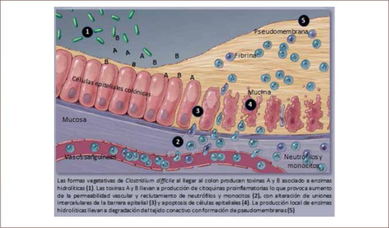 toxina clostridium difficile a y b