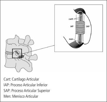Evaluación y manejo del dolor lumbar de origen facetario - ScienceDirect
