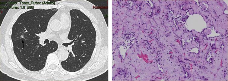 Adenocarcinoma Bronquiolo Alveolar Pdf