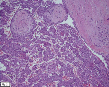 Clinica las condes anatomia patologica