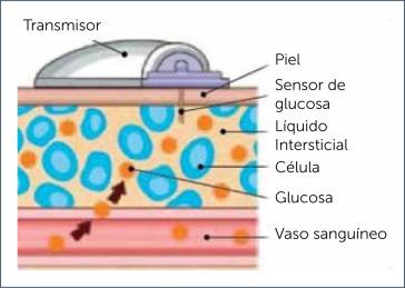 diabetes tipo 1 constante bajo azúcar en la sangre