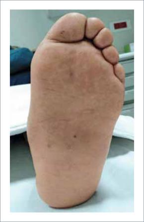 Asociación de heridas en el pie por diabetes