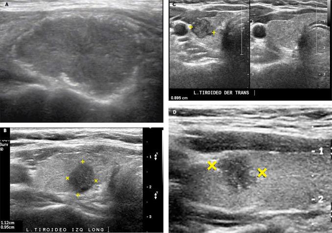 agenesia del lóbulo tiroideo