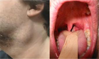 tratamiento de papiloma en boca
