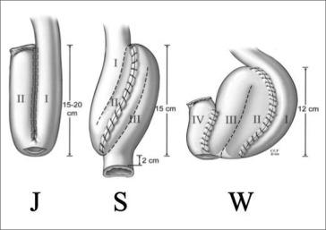 Tratamiento Quirurgico De La Colitis Ulcerosa Sciencedirect