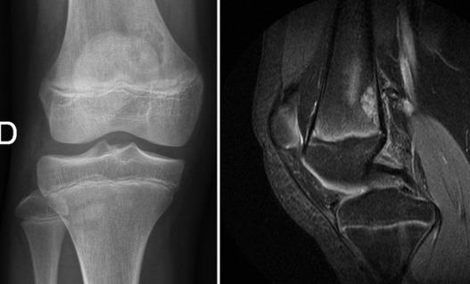 placa de una rodilla normal