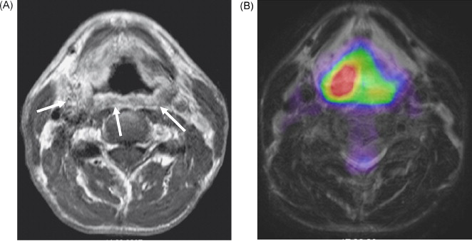 Imaging Of The Larynx And Hypopharynx Sciencedirect