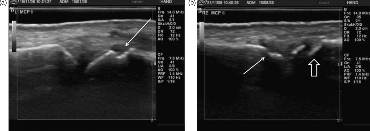 Quantification Of Synovial And Erosive Changes In Rheumatoid Arthritis With Ultrasound Revisited Sciencedirect