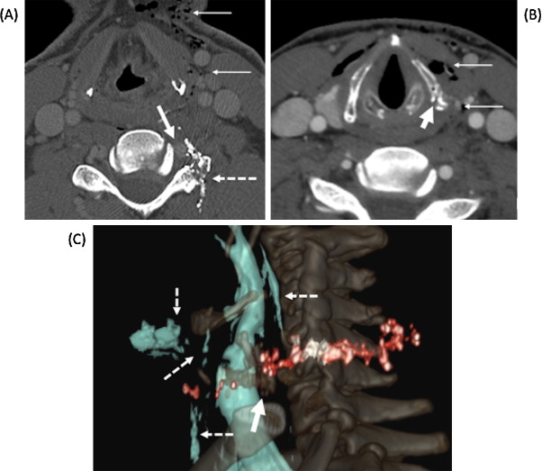 Imaging Of Laryngeal Trauma Sciencedirect