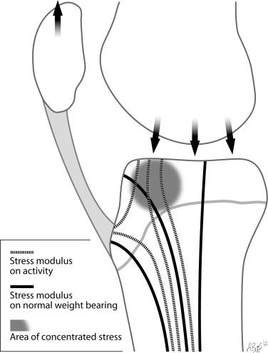 Intra Epiphyseal Stress Injury Of The Proximal Tibial Epiphysis