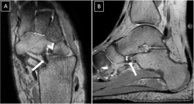 Spring ligament complex: Illustrated normal anatomy and spectrum of ...