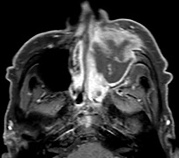Imaging Sinonasal disease with MRI: Providing insight over