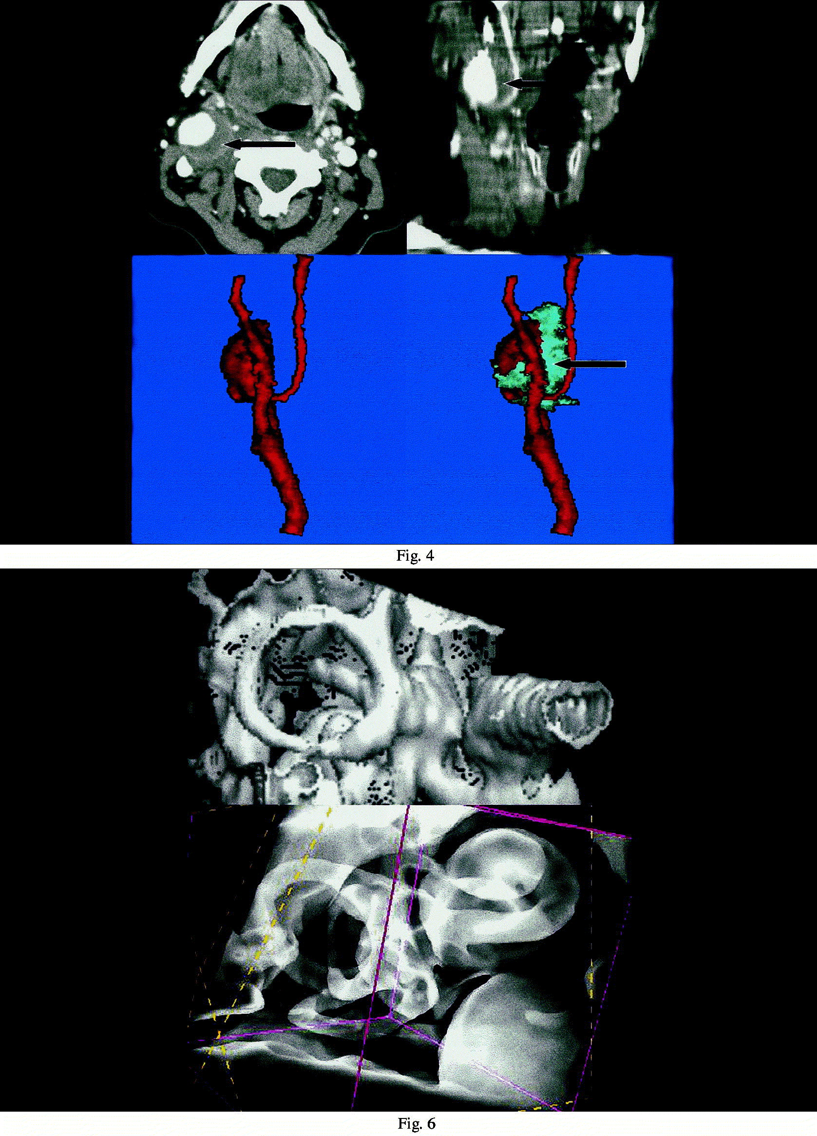 2D and 3D visualisation of head and neck tumours from spiral-CT data ...