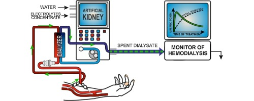 Biomedical analytical monitor of artificial kidney operation graphical abstract ccuart Image collections