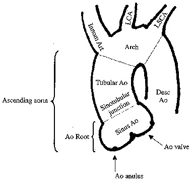 Surgical Techniques Ascending Aorta
