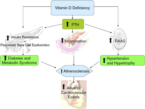 Vitamin D Deficiency An Important Common And Easily Treatable Cardiovascular Risk Factor Sciencedirect