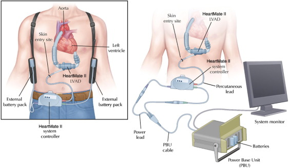 Ventricular Assist Devices: The Challenges of Outpatient