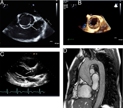 aorta bivalvia congenital pdf