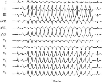 Nonsustained Ventricular Tachycardia Sciencedirect