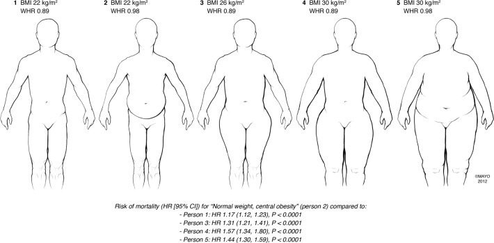 Combining Body Mass Index With Measures Of Central Obesity In The Assessment Of Mortality In Subjects With Coronary Disease Role Of Normal Weight Central Obesity Sciencedirect