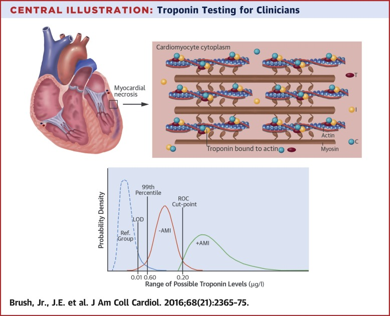 Troponin Testing For Clinicians Sciencedirect