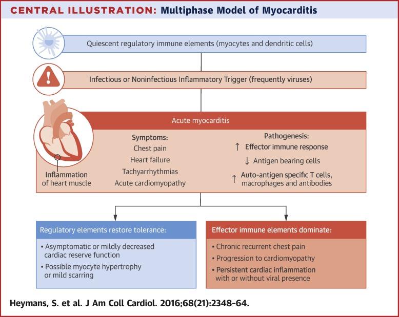 viral myocarditis symptoms
